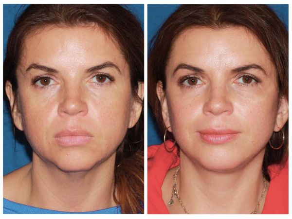 Buccal-Fat-Removal-effect
