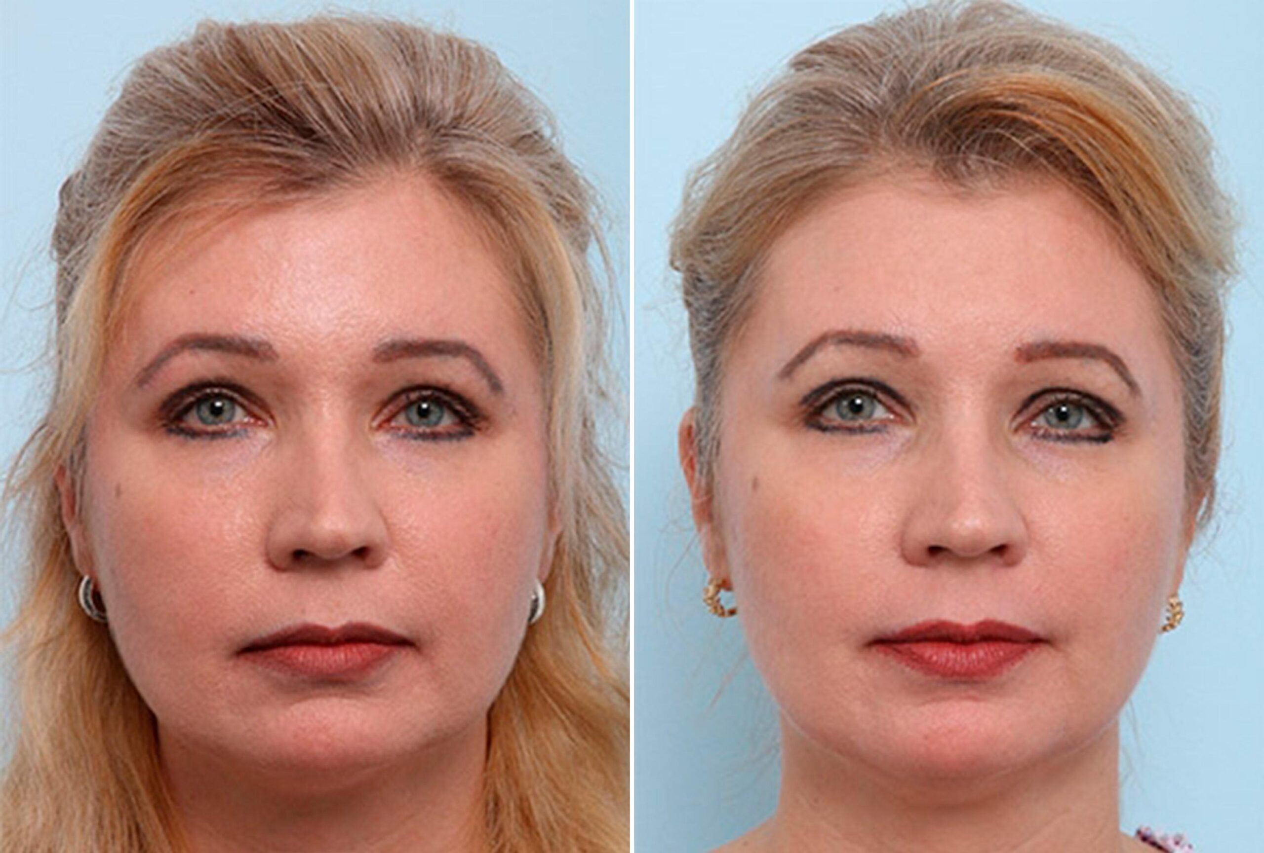 Buccal-Fat-Removal-photo