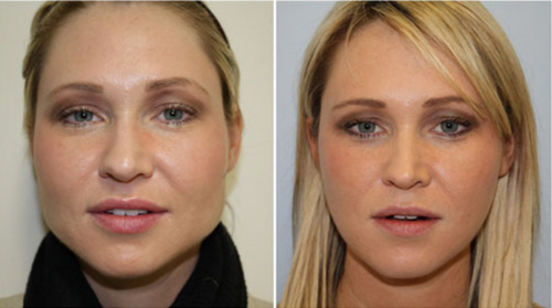 Buccal-Fat-Removal-procedure