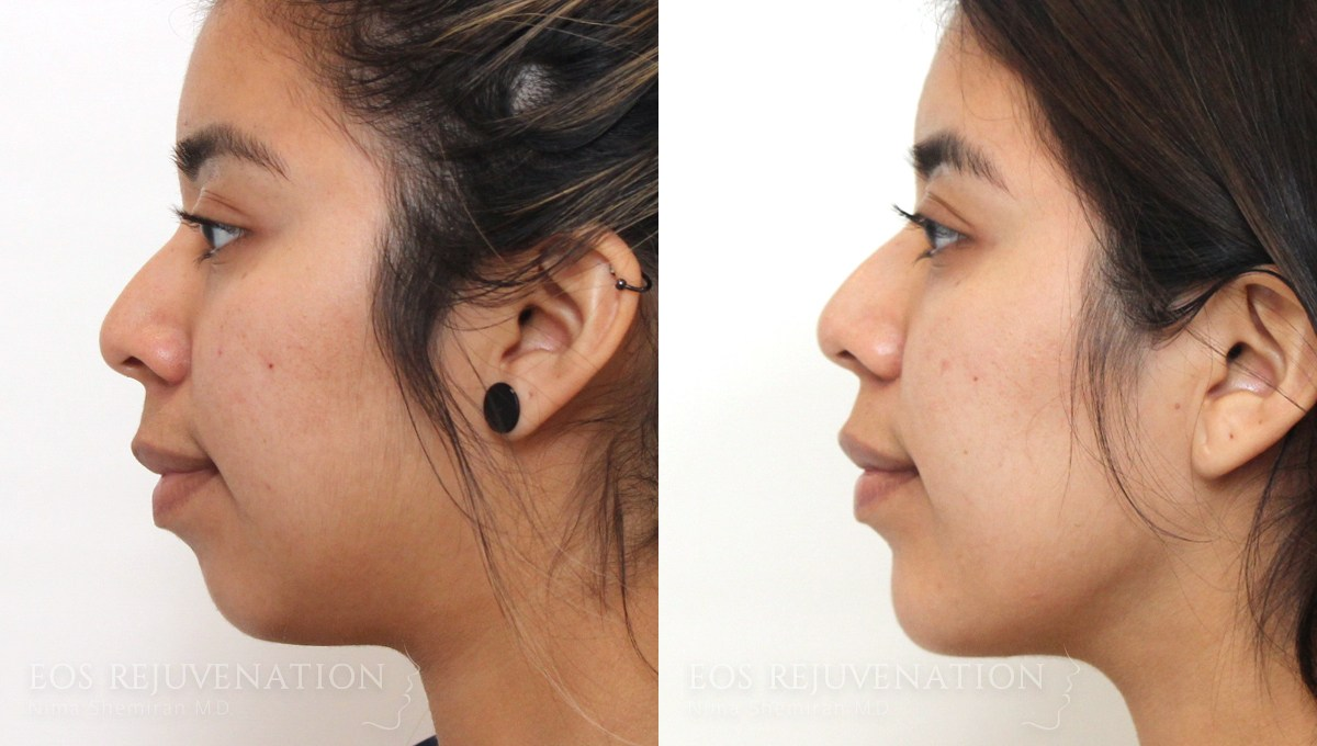 good-candidate-for-buccal-fat-removal